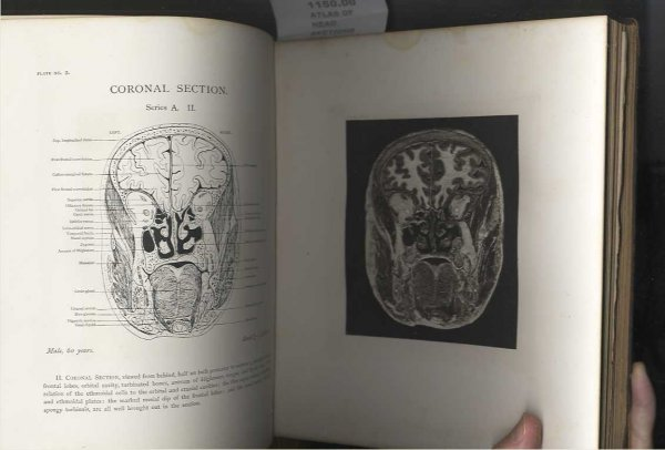 Image for ATLAS OF HEAD SECTIONS [G]